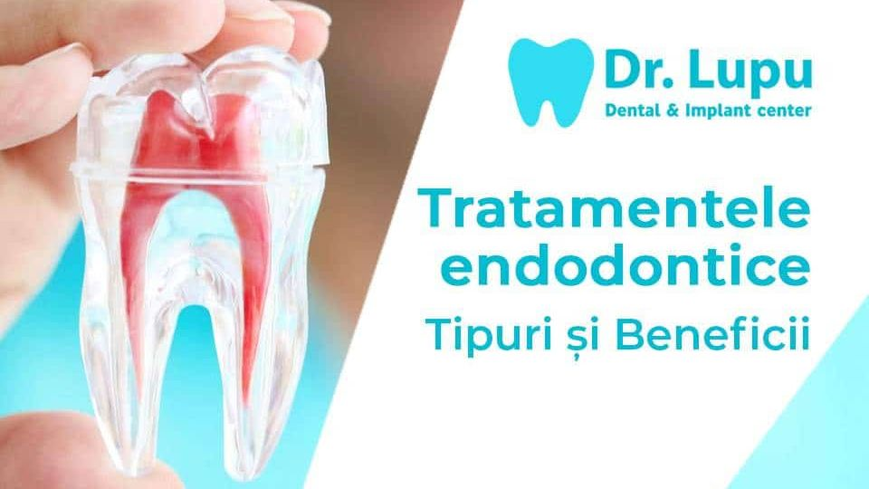 Tratamente endodontice - tipuri si beneficii -2