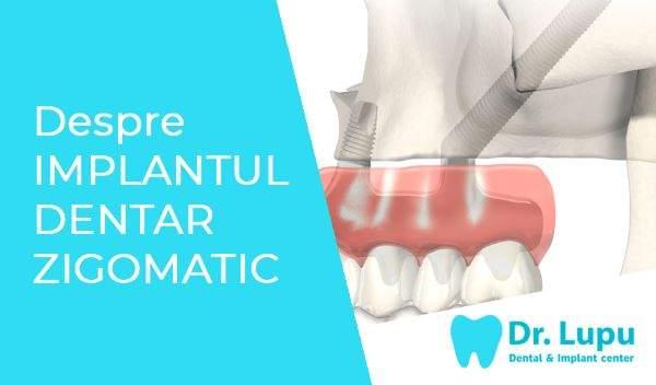 Despre implantul dentar zigomatic (1)