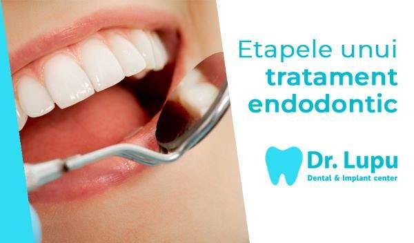 Etapele unui tratament endodontic (1)