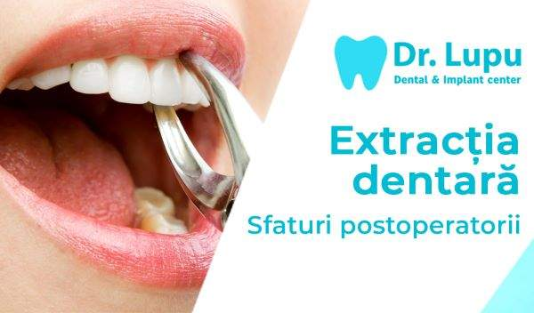 Extractia dentara - sfaturi post operatorii (1)