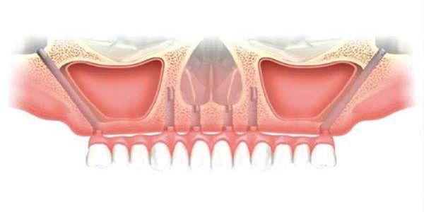 zygomatic-implant