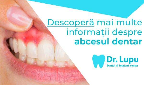 Ce este abcesul dentar (1)