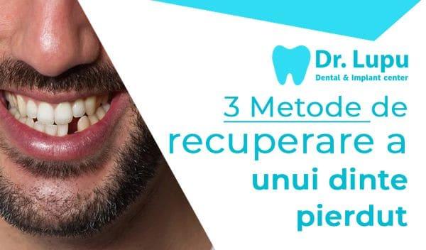 3 metode de recuperare a unui dinte pierdut