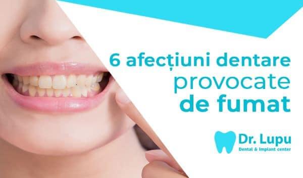 6 afectiuni dentare provocate de fumat (1)