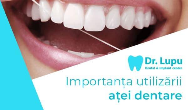 Importanta utilizarii atei dentare (1)