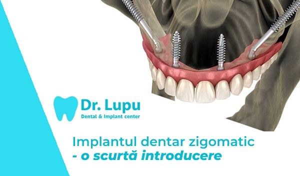 Implantul zigomatic - o scurta introducere