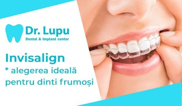 Invisalign - alegerea ideala pentru dinti frumosi